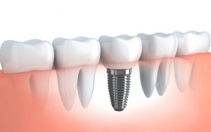 The Most Common Misconceptions About Dental Implants